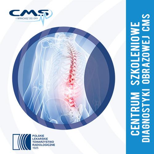 Układ mięśniowo-szkieletowy, stany nagłe, radiologia pediatryczna